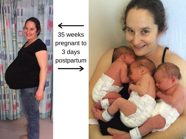 triplet-pregnancy