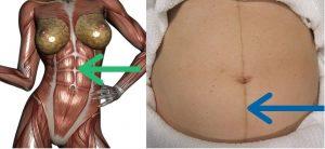 linea-alba-diastasis-recti