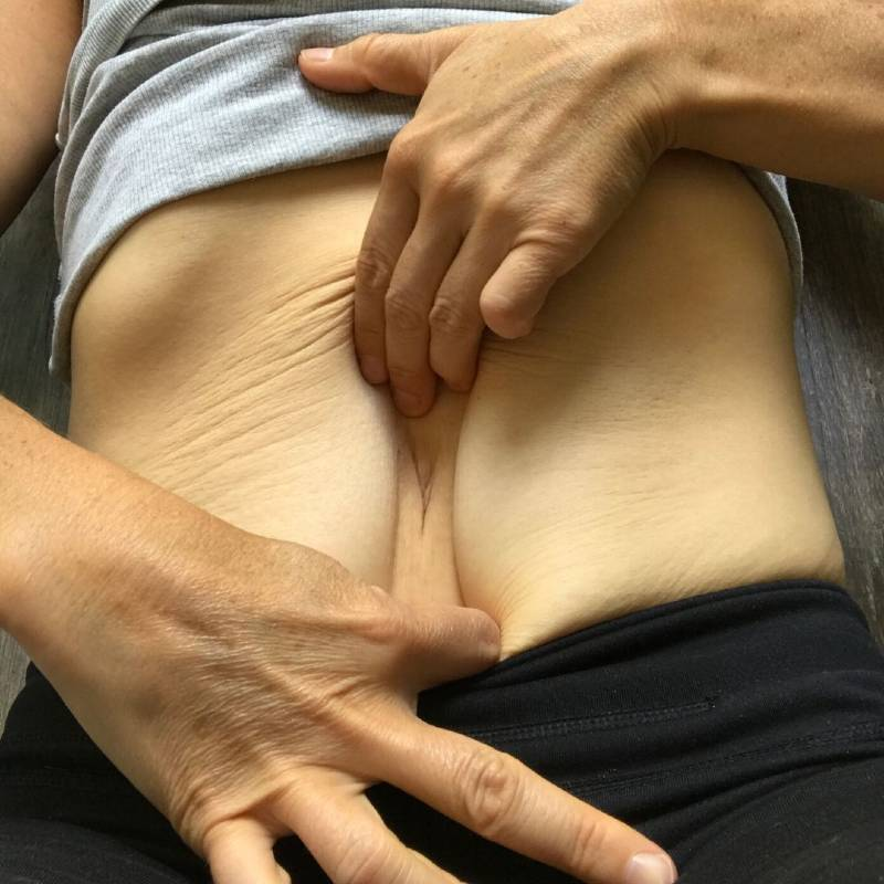 what-is-diastasis-recti