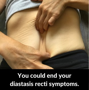 end-diastasis-recti-symptoms