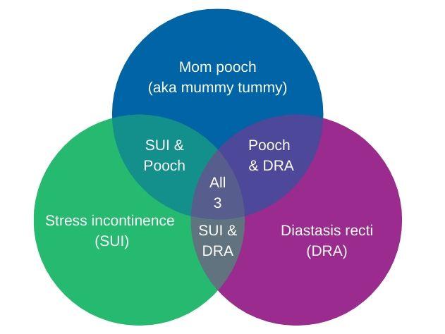 varieties-of-diastasis-recti